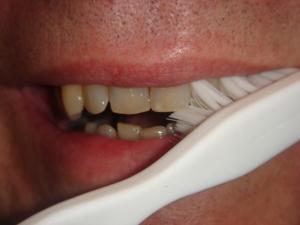 Daglig tandpleje